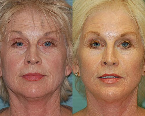 facelift before and after dr arthur cambeiro las vegas and henderson