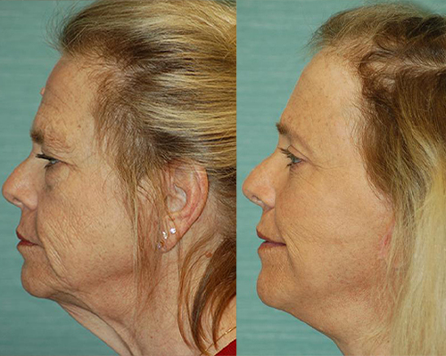 facelift side view dr cambeiro las vegas and henderson
