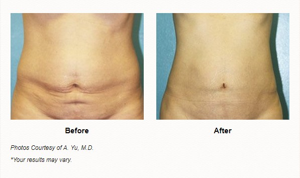 smartlipo triplex before and after las vegas