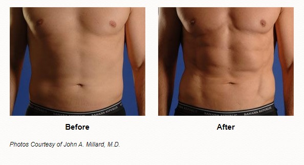 smartlipo triplex male before and after las vegas and henderson