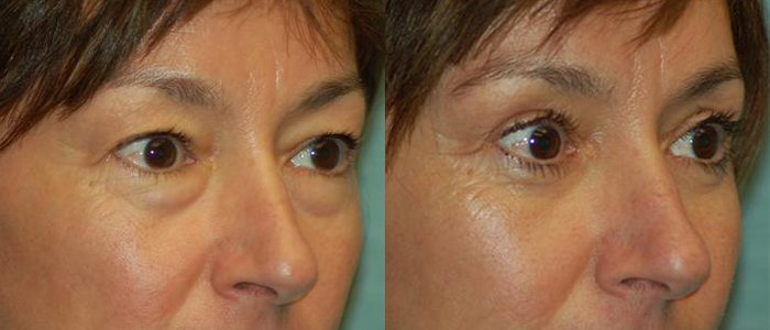 blepharoplasty dr arthur cambeiro las vegas and henderson side view