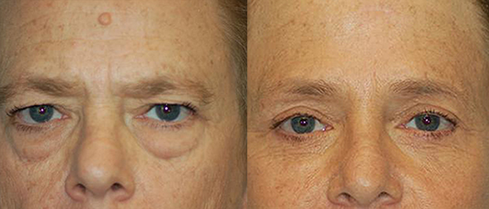 blepharoplasty las vegas and henderson dr arthur cambeiro front view