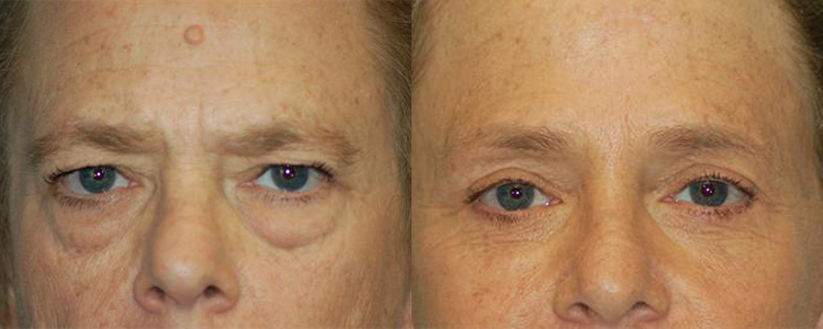 brow lift before and after in las vegas and henderson dr cambeiro