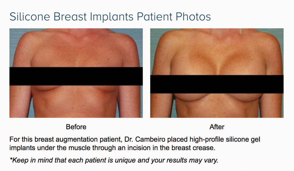 breast augmentation before and after in las vegas and henderson with dr. cambeiro