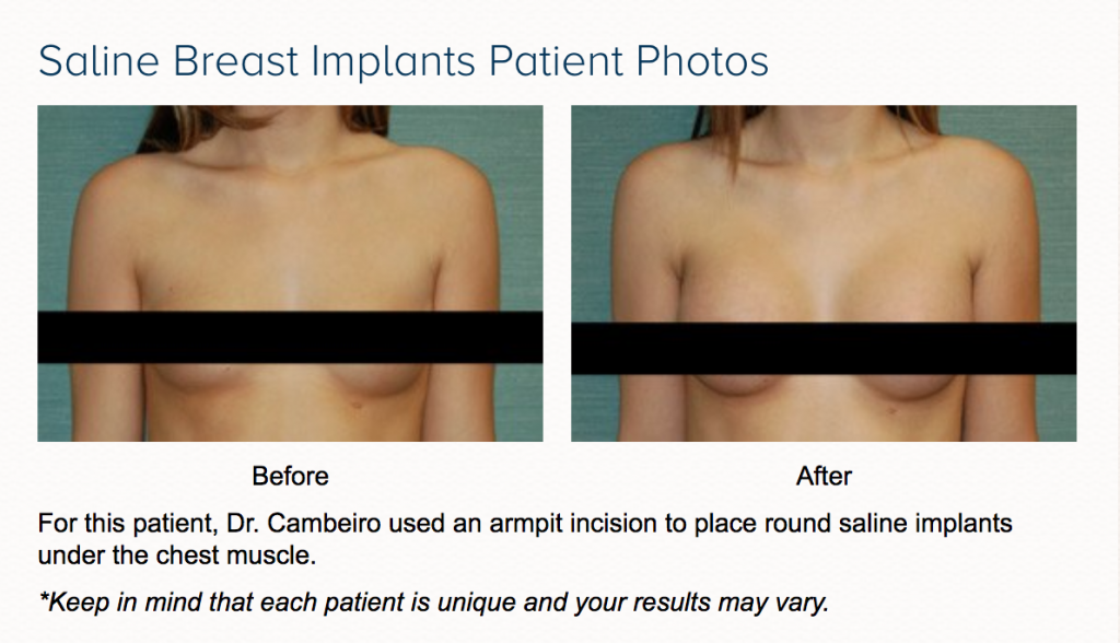 breast implant options before and after in las vegas and henderson dr cambeiro