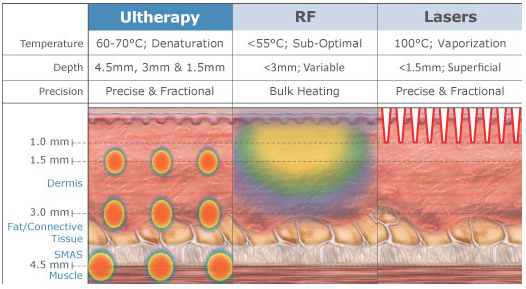 ultherapy vs radio frequency in las vegas and henderson with dr cambeiro