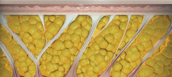 cellulaze treatment las vegas and henderson