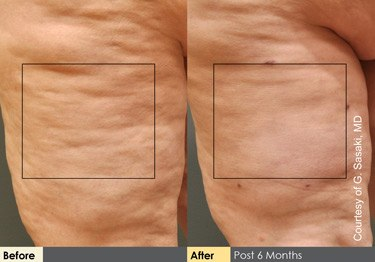 before and after cellulaze in las vegas and henderson dr arthur cambeiro