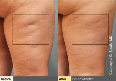 cellulaze before and after las vegas and henderson dr cambeiro