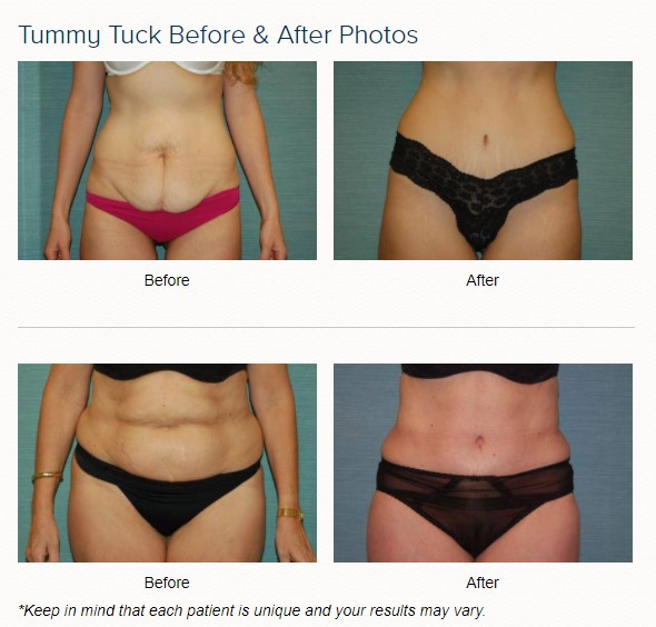 tummy tuck before and after in las vegas and henderson with dr cambeiro