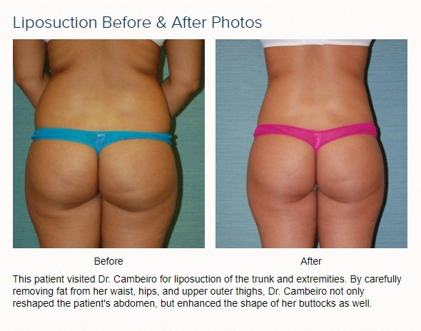 liposuction before and after with dr arthur cambeiro